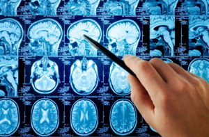 Neurology_shutterstock_13885375